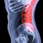 7月18日 「脊柱のスペシャルケースに対するピラティスアプローチ in 福岡」2